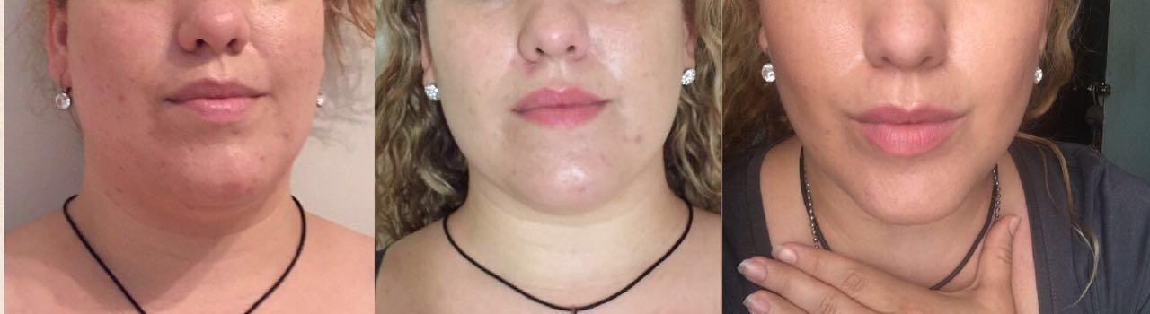 1 Behandlung 30 Tage