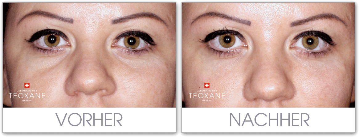 vorher nacher Foto Augenringe Behandlung Dr. Hoffmann